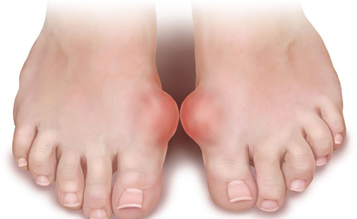 what dreams of gout